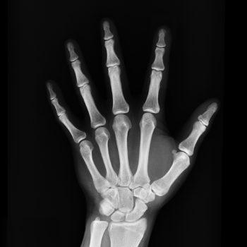 x-rays chiropractor greenville nc