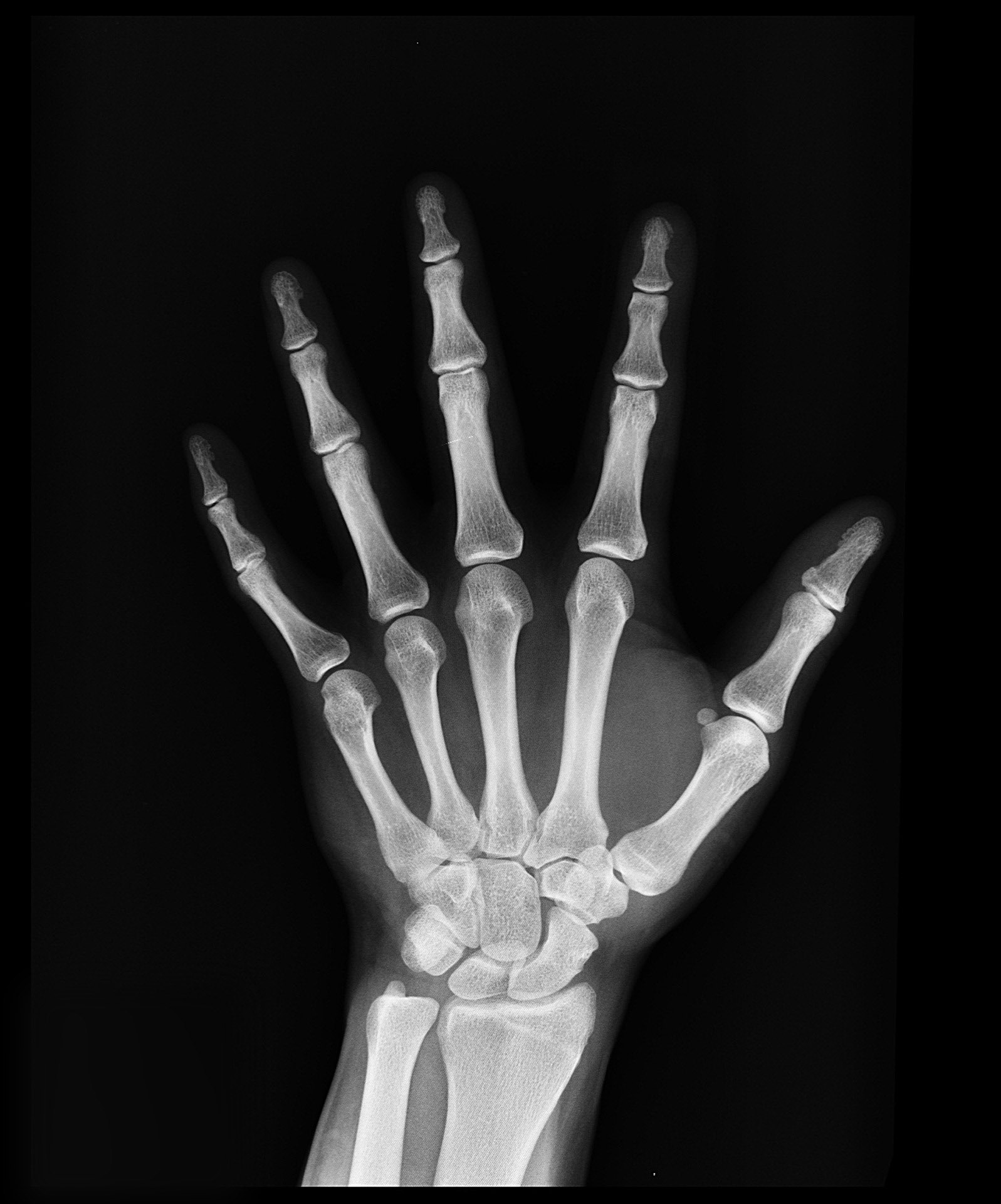 Why You NEED X-rays If You're Going To A Chiropractor