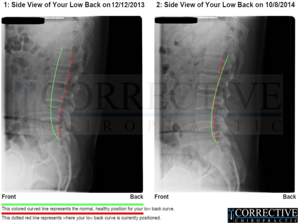 Corrective Chiropractic X-Ray Results