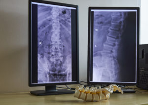 X-rays at Corrective Chiropractic Greenville NC